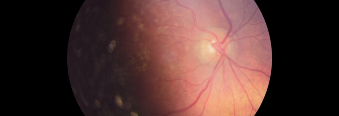 Gene Therapy May Rescue Visual Acuity in People with LHON Disease
