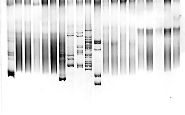 mutations and mitochondrial disease in four siblings born to related parents.