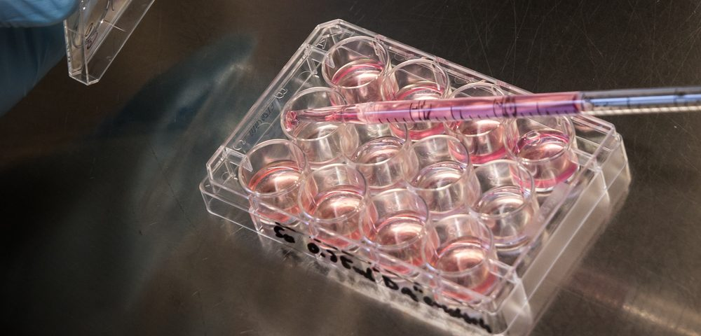Cell-reprogramming Method Developed to Test Approved Therapies on Mitochondrial Disease